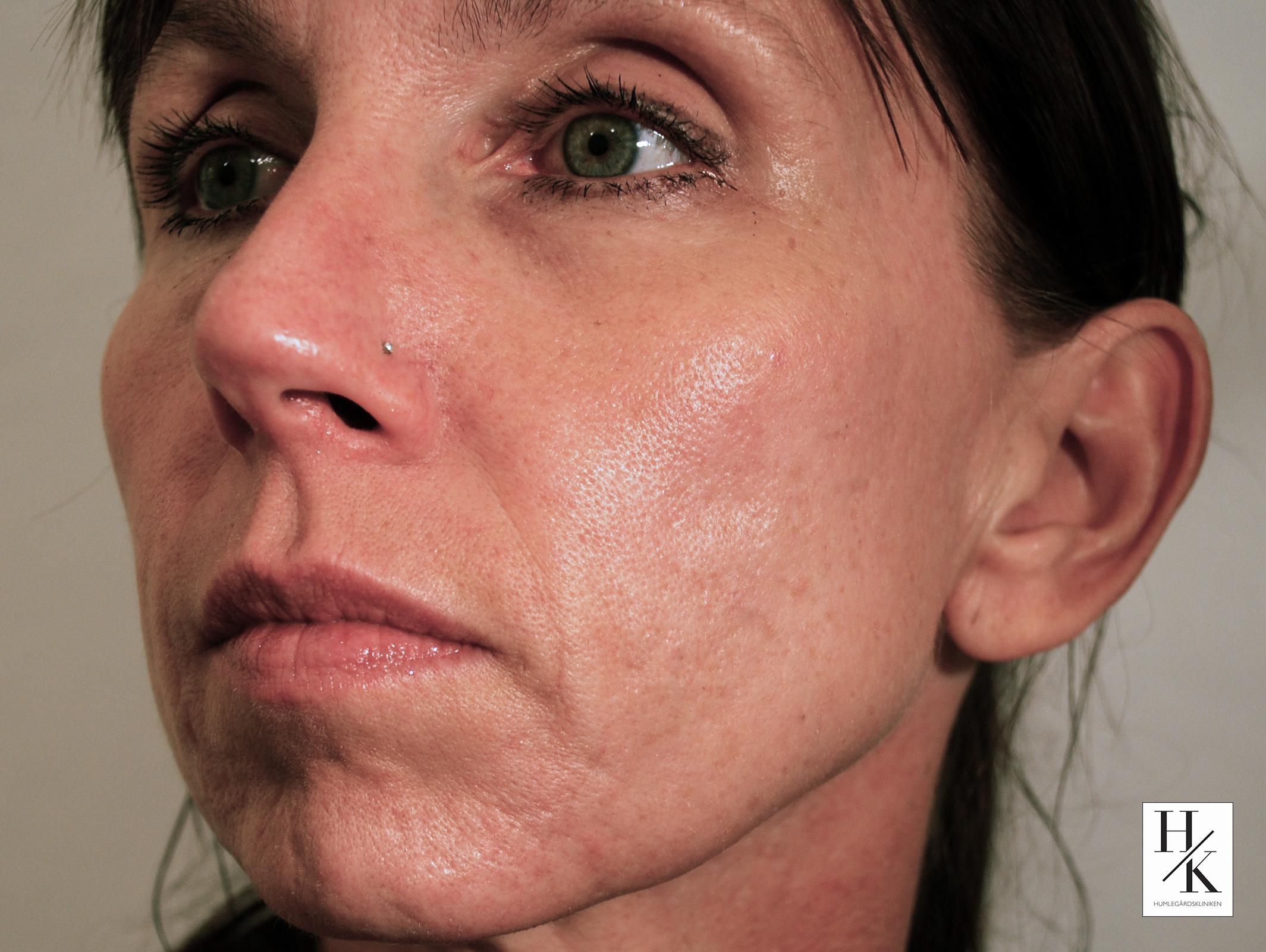 Efter_acne_2